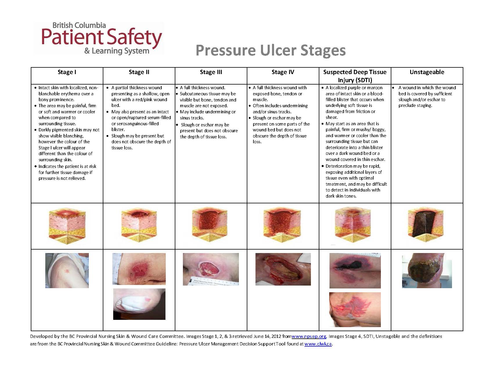 pressure ulcer care International collaboration was to develop evidence-based recommendations for the prevention and treatment of pressure ulcers that could be used by health professionals throughout the world an explicit scientific methodology.